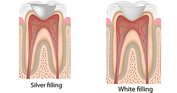 Dental Filling-North Miami-Phanord